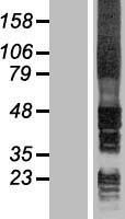 NBL1-11602 - Signal Peptide Peptidase Lysate