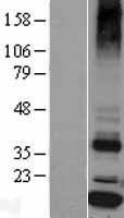 NBL1-16475 - Signal sequence receptor delta Lysate