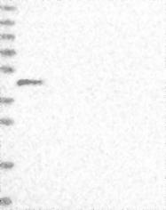 NBP1-88551 - SMYD1