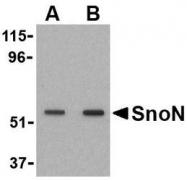 NBP1-77306 - SKIL / SnoN