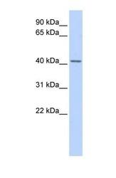 NBP1-57132 - Snurportin-1 (SNUPN)