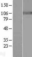 NBL1-07809 - Sodium Potassium ATPase Alpha 3 Lysate