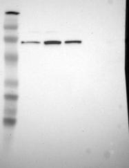 NBP1-87808 - SLC8A3 / NCX3