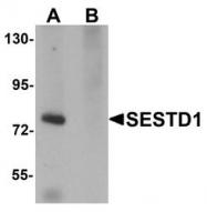 NBP1-76279 - SESTD1 / SOLO