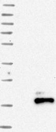 NBP1-87022 - Somatostatin / SST