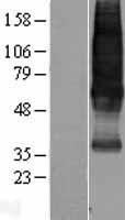 NBL1-16477 - Somatostatin Receptor 1 Lysate