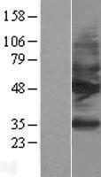 NBL1-16478 - Somatostatin Receptor 2 Lysate