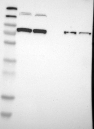 NBP1-86096 - SORCS / SORCS1