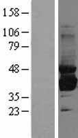 NBL1-16339 - Sorbitol Dehydrogenase Lysate