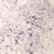 NB100-91285 - Neurotensin receptor 3