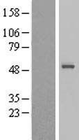 NBL1-16315 - Sorting Nexin 32 Lysate
