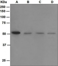 NBP1-95737 - Sphingosine kinase 1 (SPHK1)