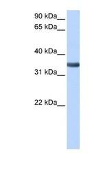 NBP1-59177 - Spondin 2 / SPON2