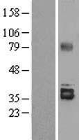 NBL1-16534 - Stanniocalcin 2 Lysate