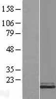 NBL1-16557 - Stathmin 1 Lysate