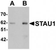 NBP1-76303 - STAU / STAU1