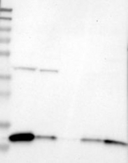 NBP1-85430 - Cystatin-B