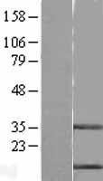 NBL1-09554 - Stefin B Lysate