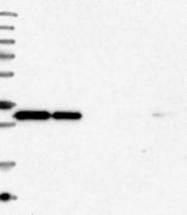 NBP1-85869 - Syntaxin 6 / STX6