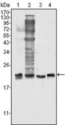 NBP1-47443 - Superoxide Dismutase 1 / SOD1