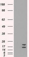 NBP1-47993 - Superoxide Dismutase 1 / SOD1