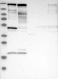 NBP1-90363 - Supervillin / SVIL