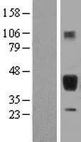 NBL1-15894 - Surfactant Protein B Lysate