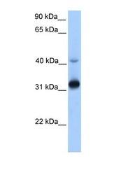 NBP1-60088 - TECR / GPSN2