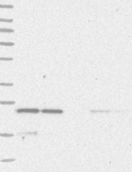 NBP1-87439 - YKT6