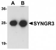 NBP1-77102 - Synaptogyrin-3 / SYNGR3