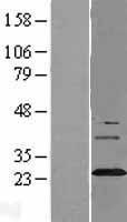 NBL1-16641 - Synaptogyrin 3 Lysate