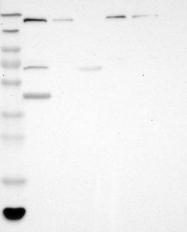 NBP1-87842 - Synaptojanin-1 / SYNJ1