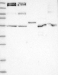 NBP1-87843 - Synaptojanin-2 / SYNJ2
