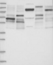 NBP1-87887 - Synaptopodin / SYNPO