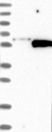 NBP1-87475 - Synaptotagmin-5