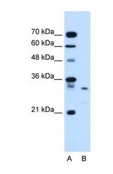 NBP1-59336 - Syntenin-1 / SDCBP