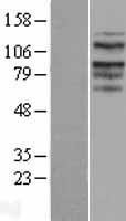 NBL1-16670 - TACC2 Lysate