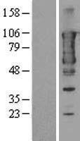 NBL1-16671 - TACC3 Lysate