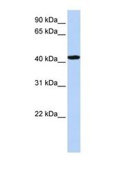 NBP1-56629 - TADA1L