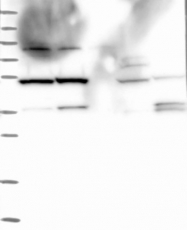 NBP1-90243 - TADA3L