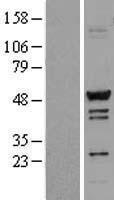 NBL1-16678 - TADA3L Lysate