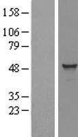 NBL1-16679 - TADA3L Lysate