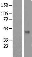 NBL1-16687 - TAF5L Lysate
