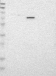 NBP1-82774 - TAF6