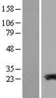 NBL1-16694 - TAGLN3 Lysate