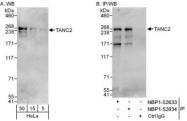 NBP1-52633 - TANC2