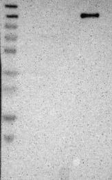 NBP1-81465 - TAO kinase 2 (TAOK2)