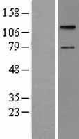 NBL1-16697 - TAOK2 Lysate