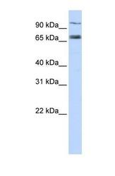 NBP1-59030 - ABCB2 / APT1 / TAP1