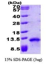 NBP1-30201 - TARC / CCL17